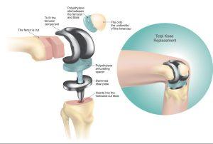 Total Knee Replacement Diagram
