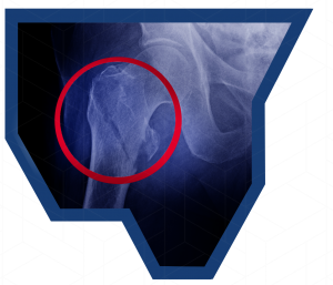 Hip Fracture Fixation - diagnosis xray